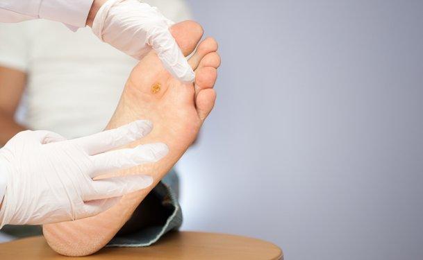 Как вылечить незаживающую рану на ноге